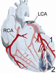 Diagram över en hjärtinfarkt (2) av toppen av främre hjärtväggen efter en ocklusion (1) av en gren av hjärtats koronarkärl (LCA = vänster koronarartär).